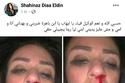 شاهيناز نشرت صوراً كشفت عن تعرضها للعنف الزوجي على يد زوجها