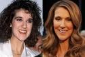 تغيرات جذرية في وجوه المشاهير بعد تجميل أسنانهم
