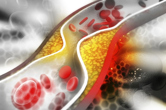 مضاعفات ومخاطر الكوليسترول