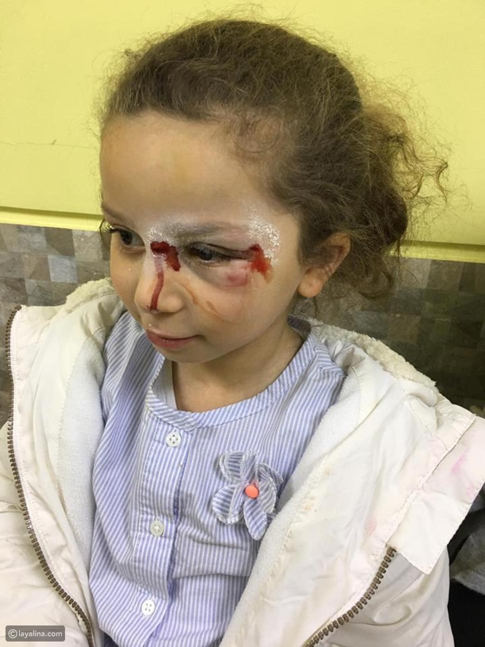 لارا حفيدة شريف مصابة بإصابات بالغة