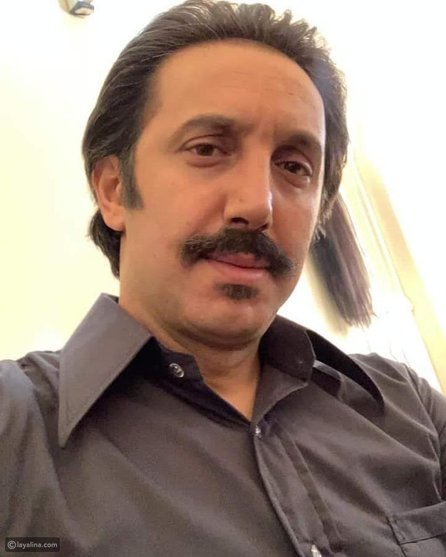 أحمد الأحمد بعد عملية التجميل