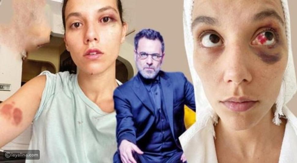 الممثل التركي أوزان جوفين يتلقى حكماً قاسياً بسجنه
