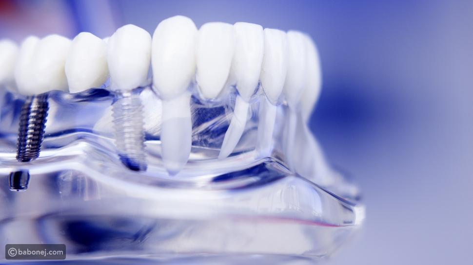 عملية زراعة الأسنان: آلية تطبيقها وبعض أضرارها