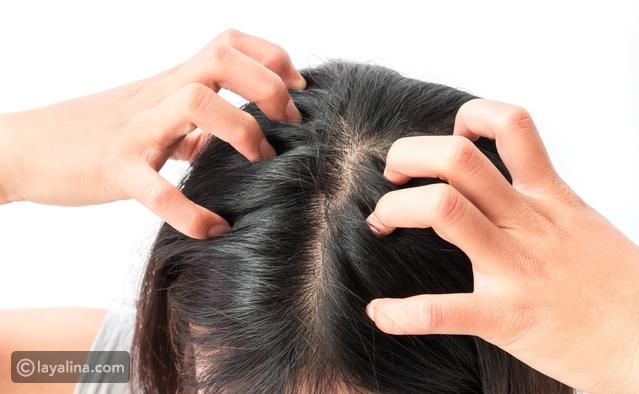 العلاج المناسب لحكة فروة الرأس المصاحبة لفصل الشتاء ليالينا