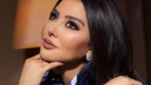 فيديو ميساء مغربي تفجر مفاجأة عن سبب انتفاخ وجهها