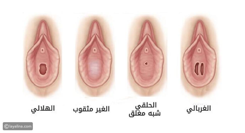 صورة توضح أنواع غشاء البكارة