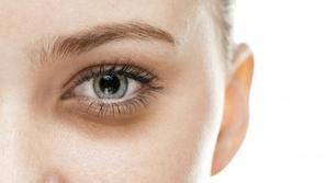 اسباب وعلاج الهالات السوداء والداكنة تحت العينين
