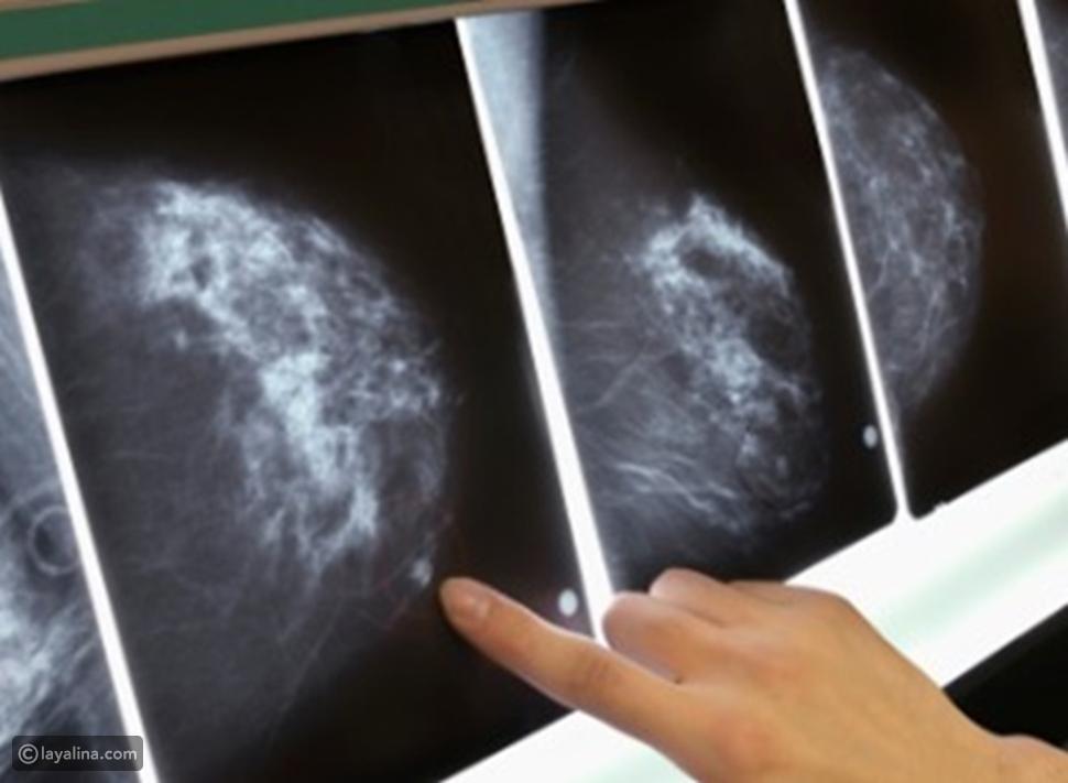 أحد أعراض سرطان الثدي غير الشائعة