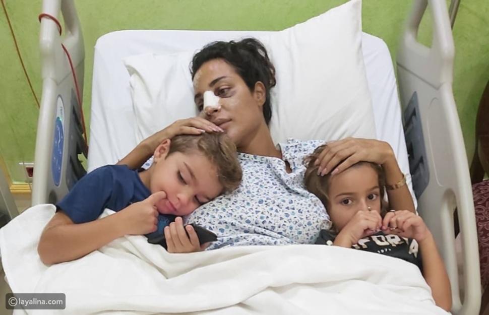 صورة نادين نجيم في المستشفى بعد لإصابتها في انفجار بيروت