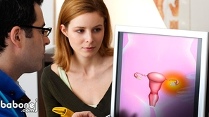 أسباب وعلاج بطانة الرحم الهاجرة (داء الانتباذ البطاني الرحمي)