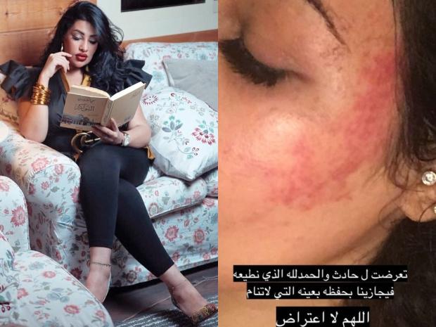 السعودية روزانا اليامي ضحية حادث سير.. وصورة تكشف حجم الإصابات