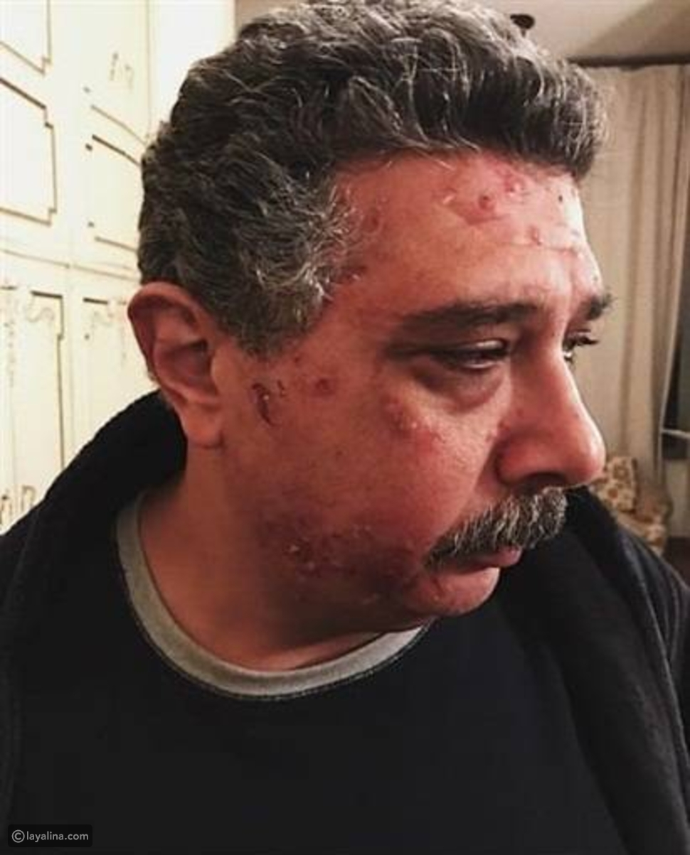 صورة ماجد الكدواني تثير الجدل حول حالته الصحية وابنه يكشف حقيقة الأمر