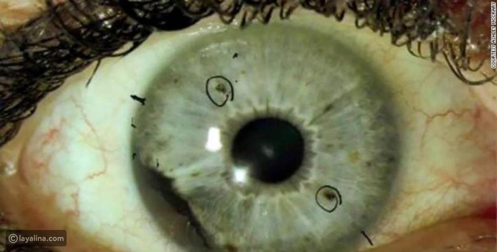 الفطر الأسود الذي أصاب عين سمير غانم: أعراضه وعلاجه وعلاقته بكورونا