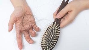علاج تساقط الشعر بالطرق المضمونة