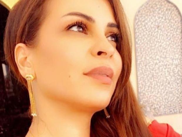 والدة حلا الترك تصدم الجمهور بملامحها بعد تحولها لنسخة عن نادين نجيم!