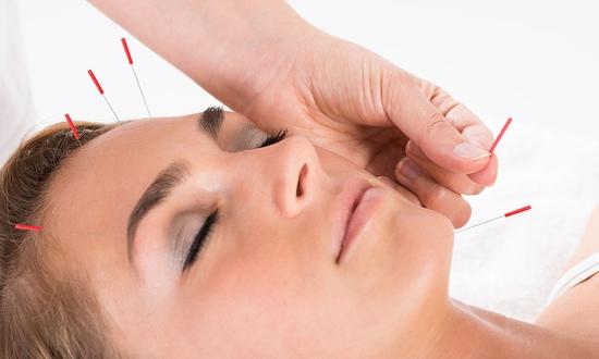 العلاج بالإبر لشد الوجه