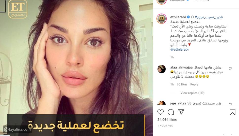معاناة نادين نجيم مستمرة..عملية جديدة في الوجه