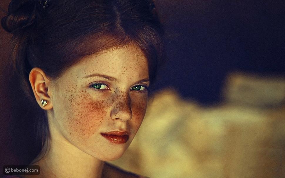 أسباب ظهور النمش في الوجه
