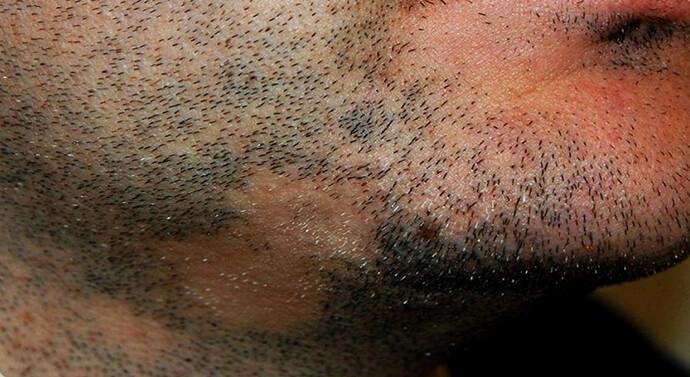 بصيلات شعر ضعيفه في اللحية