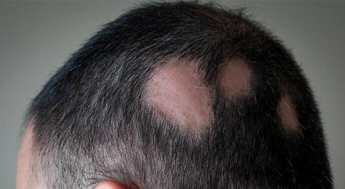 قد تظهر الثعلبة على شكل بقع في الرأس