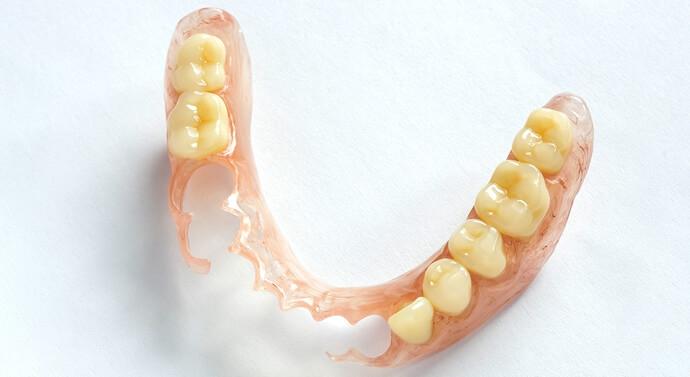 صورة طقم أسنان متحرك