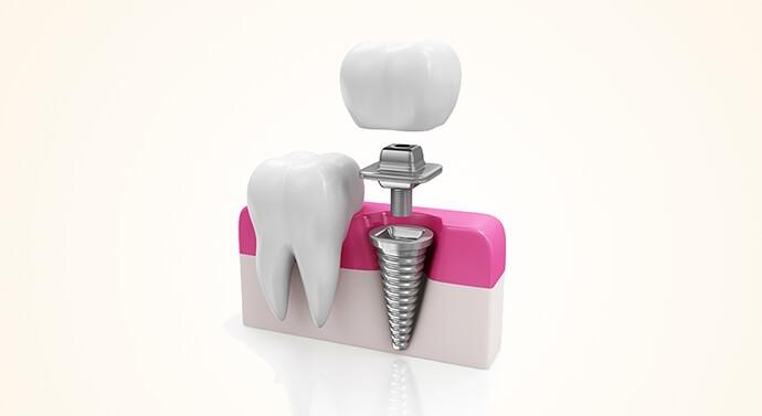 رسم توضيحي لزراعة الأسنان