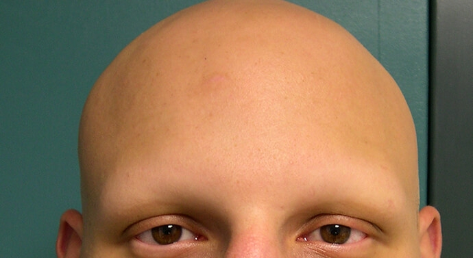 حالة تساقط شعرؤ الرأس كاملا