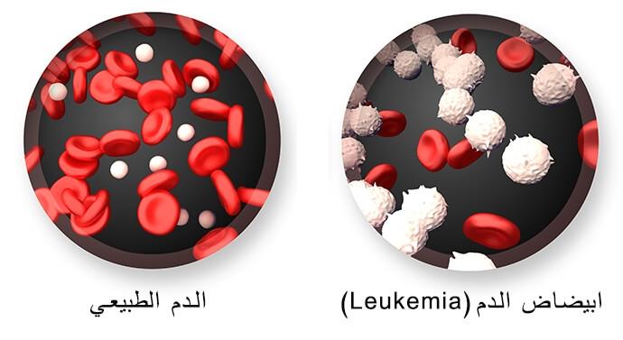 شكل كريات الدم السليمة والمصابة بالسرطان