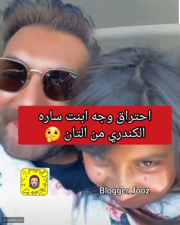 احتراق وجه ابنة سارة الكندري