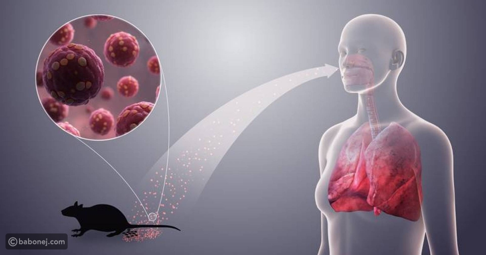 العدوى بفيروس هانتا في الصين
